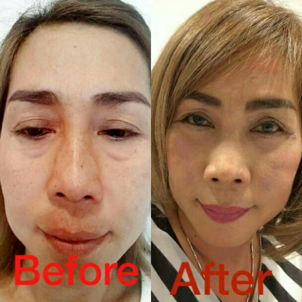 Sitthichai Cosmetic Clinic