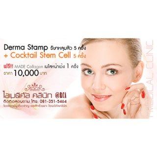 รักษาหลุมสิว ด้วย Derma stamp