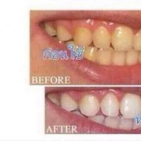 น้ำยาบ้วนปากฟันขาว