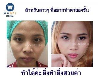 บริการศัลยกรรมตาสองชั้น