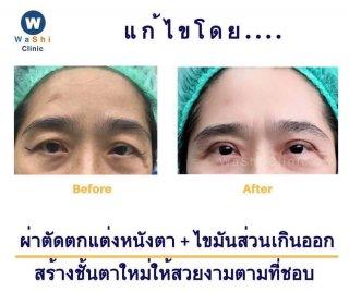 JEWEL EYE ศัลยกรรมตาสองชั้น